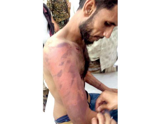 Photo of تعذيب يمني بمعتقل سعودي سري في المهرة