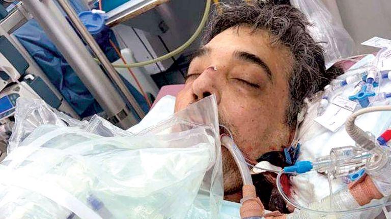 Photo of وفاة أقدم مريض كورونا بعد معاناة دامت 14 شهرًا